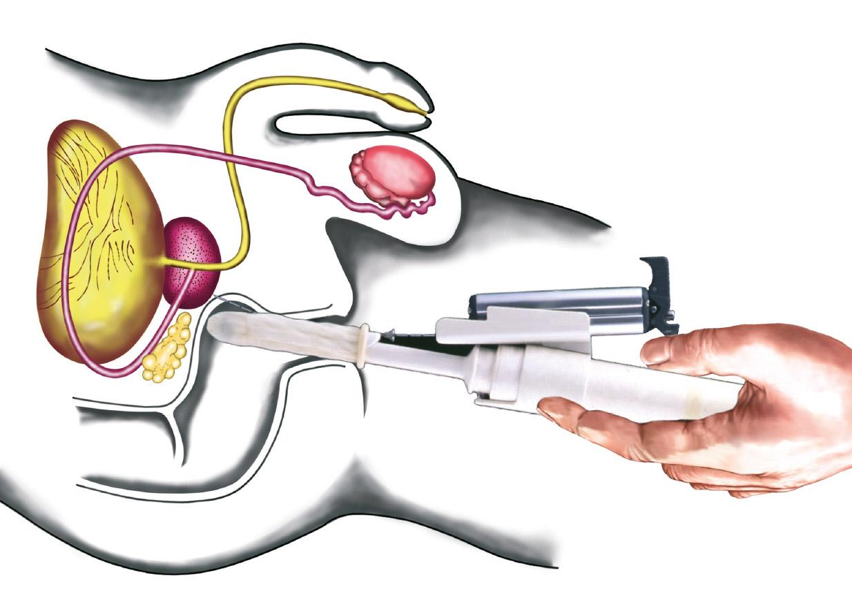 urologie prostata untersuchung